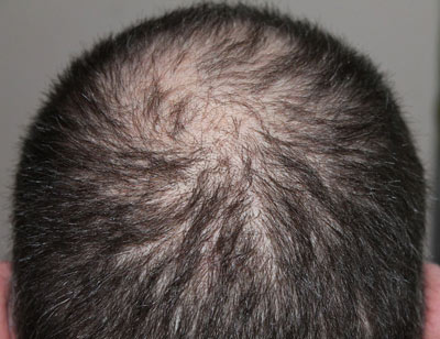 male hair loss prevention