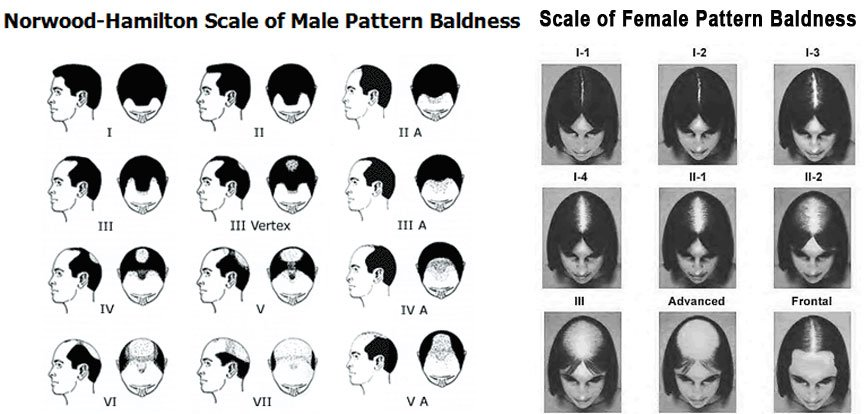 scale of baldness