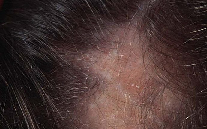 lupus hair loss women