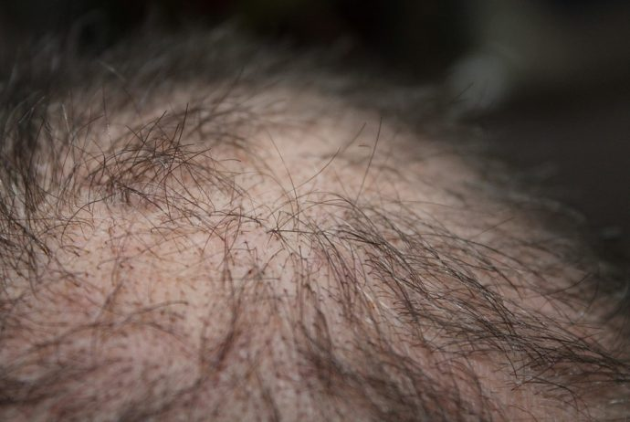 hair loss heart disease